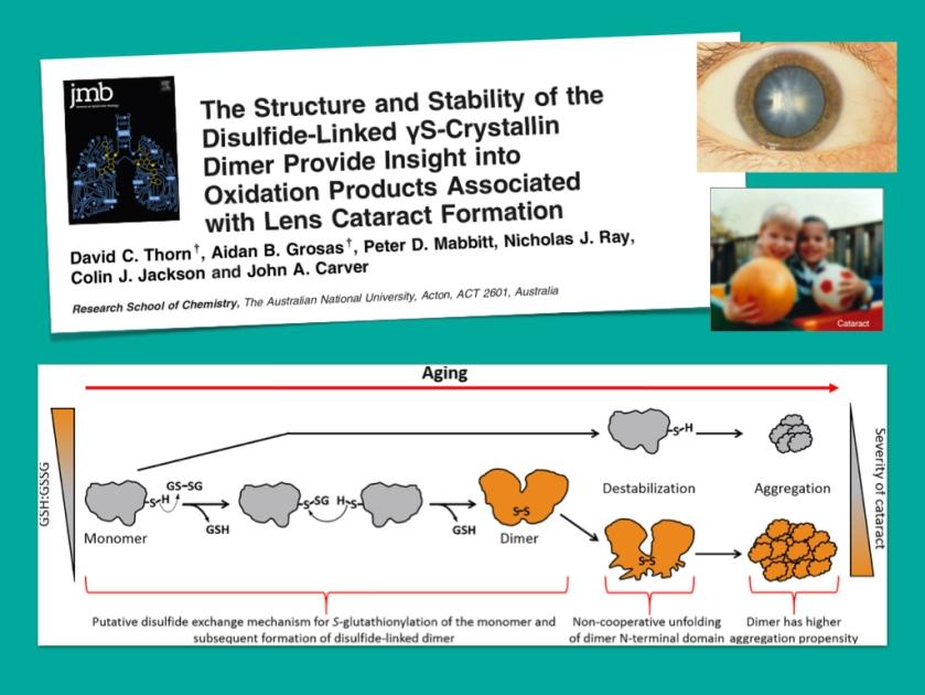 cataract.001